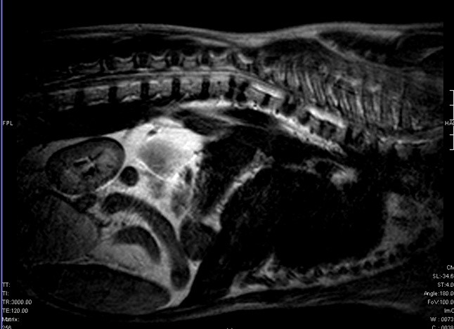 Магнитно резонансная томография